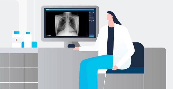 AI-Powered Stroke Imaging Solution